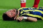 Rùng mình trước ca chấn thương kinh hoàng ở bán kết Europa League