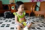 Điểm báo sáng ngày 29/6: Bảo mẫu phạt bé 3 tuổi đứng nắng bỏng chân