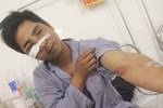 """GĐ Công an Hà Nội chỉ đạo làm rõ vụ 141 bị dân """"tố' đánh gãy xương"""
