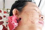Nam thanh niên trúng đạn tại đồn công an