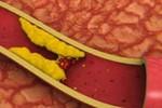 6 loại thực phẩm giúp chống xơ vữa động mạch