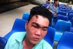 Tạm đình chỉ một chiến sỹ vụ nghi hư mắt vì trúng gậy của cảnh sát