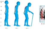 Giải đáp những câu hỏi cần thiết nhất về sức khỏe của xương