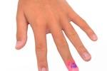 Dấu hiệu bệnh trên bàn tay