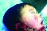 Thím dâu tàn độc cắt đứt tai cháu trai 6 tuổi ném vào bồn cầu