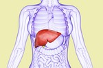 Chuyện gì xảy ra nếu bạn mắc Viêm gan C?