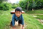 Bàn tay chi chít sẹo của cậu bé 5 năm bò đến trường