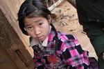 Bé gái người Mông 3 năm sống với cái chân lúc nhúc giòi