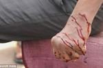 Phép chữa bệnh kỳ dị mà hiệu quả của người Ấn Độ: Dao lam rạch máu