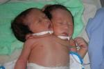 Bé sơ sinh 2 đầu ở Sóc Trăng đã tử vong
