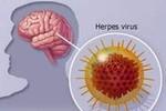Viêm não virus, phòng bệnh bằng cách nào?
