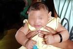 Việt Nam xác nhận em bé đầu tiên mắc chứng đầu nhỏ nghi do vi rút Zika