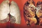 Kinh hoàng ung thư phổi từ thuốc lá