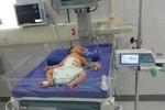 Phẫu thuật cứu sống bé mới sinh lộ nội tạng ra ngoài