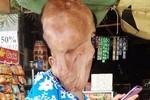 Thiếu nữ không có tóc, mặt chảy xệ tại Sóc Trăng