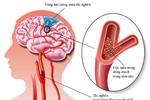 Phương pháp mới hỗ trợ điều trị thiểu năng tuần hoàn não