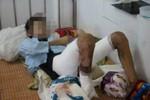Bé trai 13 tuổi bị bố đánh đập, mẹ đẩy vào lửa gây bỏng nặng