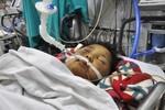 Bé trai 8 tuổi bị bố đẻ đánh dã man bằng điếu cày đã qua đời