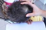 """Giáo viên bị tố đánh """"chấn động não"""" bé 3 tuổi"""