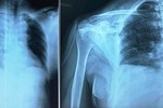 Cấp cứu thành công bệnh nhân bị đâm thấu ngực, nhóm máu rất hiếm
