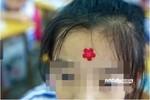 Trung Quốc: Phẫn nộ vì giáo viên đóng dấu lên mặt học sinh