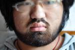 Thương tâm một thiếu nữ 16 tuổi mọc râu quai nón