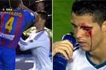 Ronaldo đổ máu vì đòn cùi chỏ