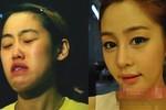 """Công nghệ thẩm mỹ biến """"vịt"""" thành """"hot girl"""" ở xứ Kim chi"""