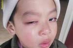 Phụ huynh kêu cứu vì nghi con mình bị cô giáo dùng thước kẻ đánh vào mắt