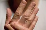 Những nguy cơ khiến bạn mắc bệnh viêm khớp vẩy nến