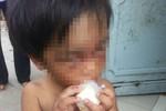 """""""Địa ngục"""" của bé 3 tuổi bị người thân hành hạ dã man bắt đi ăn xin"""