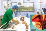 Cứu sống bệnh nhân thủng vách liên thất rất lớn do nhồi máu cơ tim