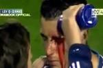 Cận cảnh chấn thương khiến Ronaldo chảy máu đầm đìa trên mặt