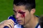 Rách mí mắt, thị lực giảm, Ronaldo nghỉ thi đấu