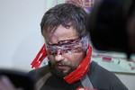 Ảnh: 3 thành viên đặc nhiệm Alpha của Ukraine bị phe ly khai bắt giữ
