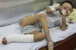 Mắc chứng bệnh cực hiếm, chàng trai ở TP.HCM rụng dần tay chân