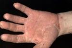 Những bài thuốc dân gian phòng và điều trị á sừng hiệu quả
