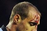 Góc ảnh: Zabaleta đổ máu, Ferguson lại to tiếng với trọng tài