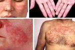 Tháo gỡ vướng mắc trong thanh toán thuốc điều trị Lupus ban đỏ