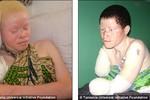 Tazania báo động vấn nạn khủng khiếp chặt chân tay người bạch tạng