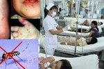 """Bệnh tay chân miệng, sốt xuất huyết dễ """"tấn công"""" trẻ trong tháng 8"""