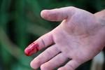 9 cách cầm máu vết thương nhanh chóng tại nhà