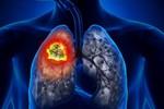 Dấu hiệu sớm cảnh báo ung thư phổi