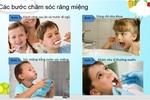 Chăm sóc răng miệng không đúng cách hậu quả khó lường