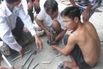 Nát bàn tay, người chi chít vết thương vì cưa hộ thỏi sắt