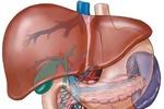 Vì sao uống nước chanh buổi sáng giúp tăng cường chức năng gan?