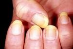 11 dấu hiệu sức khỏe mà móng tay bạn cảnh báo