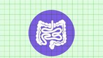 5 điều cần làm để phát hiện bệnh đại tràng sớm