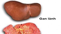Dấu hiệu nhận biết ung thư gan