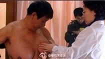 Người đàn ông bỗng dưng có ngực bự vì  thuốc mọc tóc